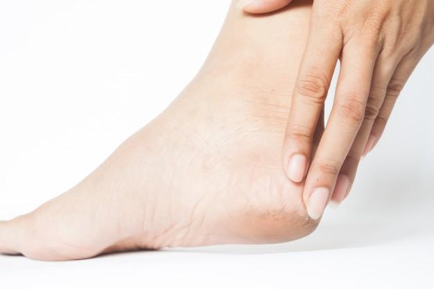 Woman Cracked Heels